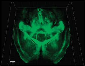 Projections neuronales dans le cerveau entier   Nature Methods 10, 508–513 (2013) doi:10.1038/nmeth.2481