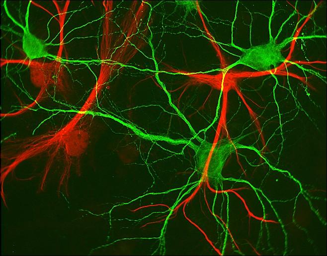 Le cerveau en images. (4/6)